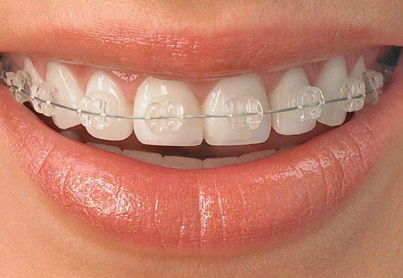 ceramic braces mar vista