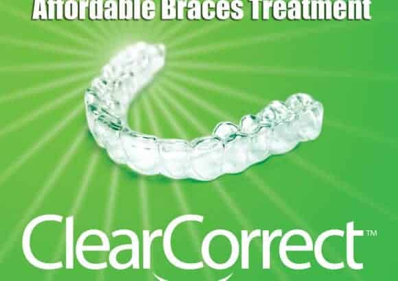 Clear Aligners Clear Correct