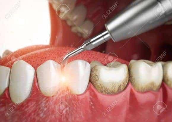 Teeth Cleaning Los Angeles