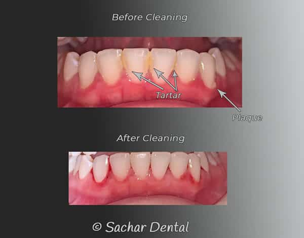 Dentist NYC for teeth cleanings in Manhattan