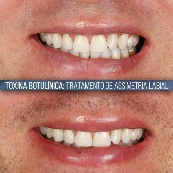 sorriso assimetrico toxina botulinica tratamento de assimetria labial