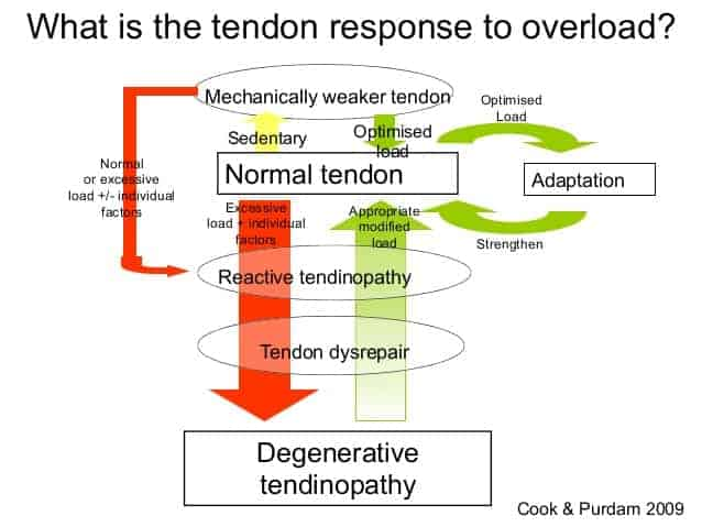 diagram of achilles tendinopathy pathology