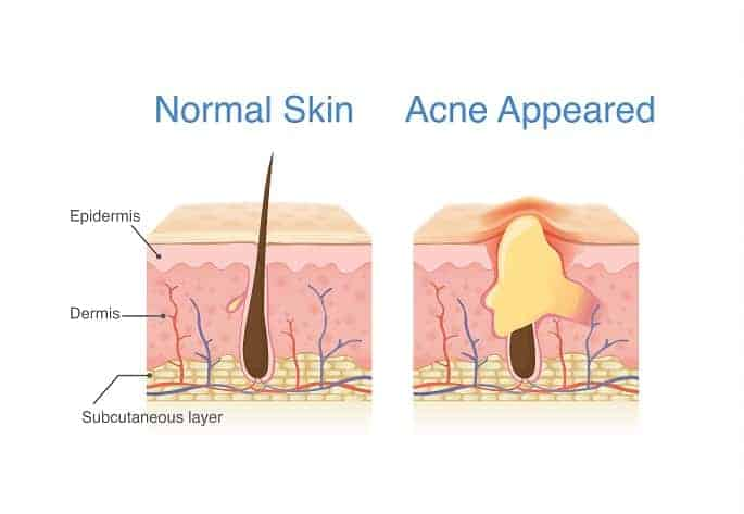 Difference of Normal skin layer and skin layer with Acne