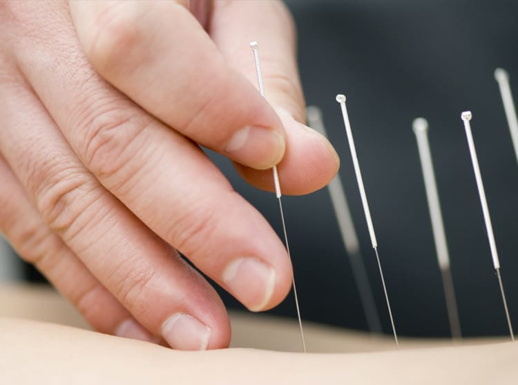 Acupuncture. Trigger Point