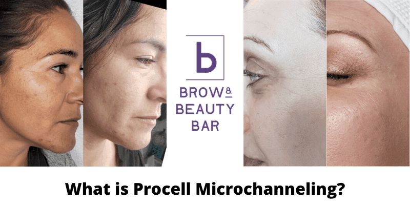 what is procell microchanneling