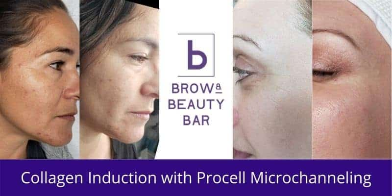 Collagen Induction with Procell Microchanneling