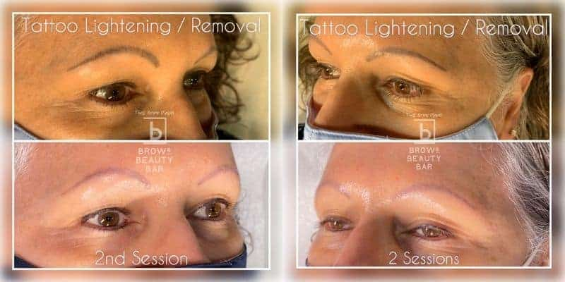 Get Rid of Your Unwanted Tattoo with Li-FT Pigment Lightening Solution