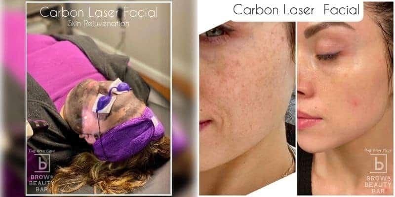 Carbon Laser Facial Treatment in Delaware