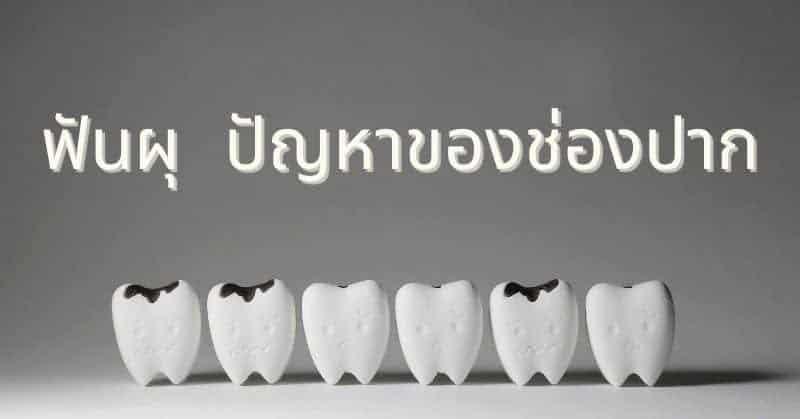ฟันผุ ปัญหาของช่องปาก