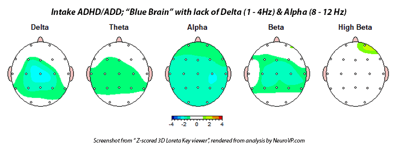 Neurofeedback ADHD ADD Blue Brain