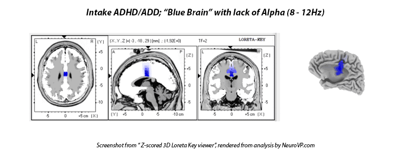 alpha waves loreta add adhd tdah tda