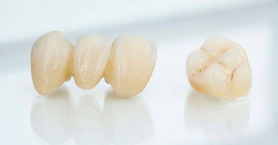 ครอบฟันเซรามิกล้วน (All Ceramic Crown)