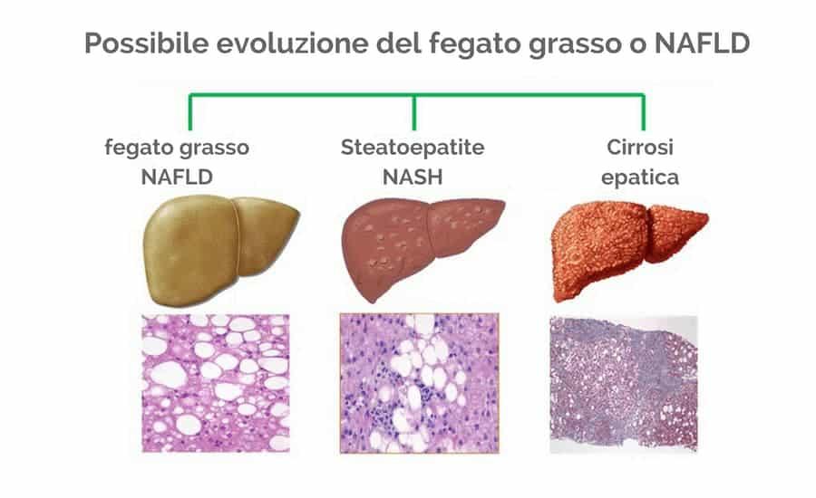 Fruttosio fegato grasso o NAFLD
