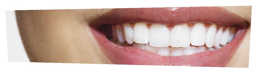 Композитная реставрация реставрация зубов в Новосибирске