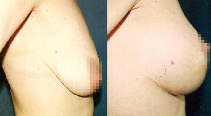 Подтяжка груди (мастопексия) 2