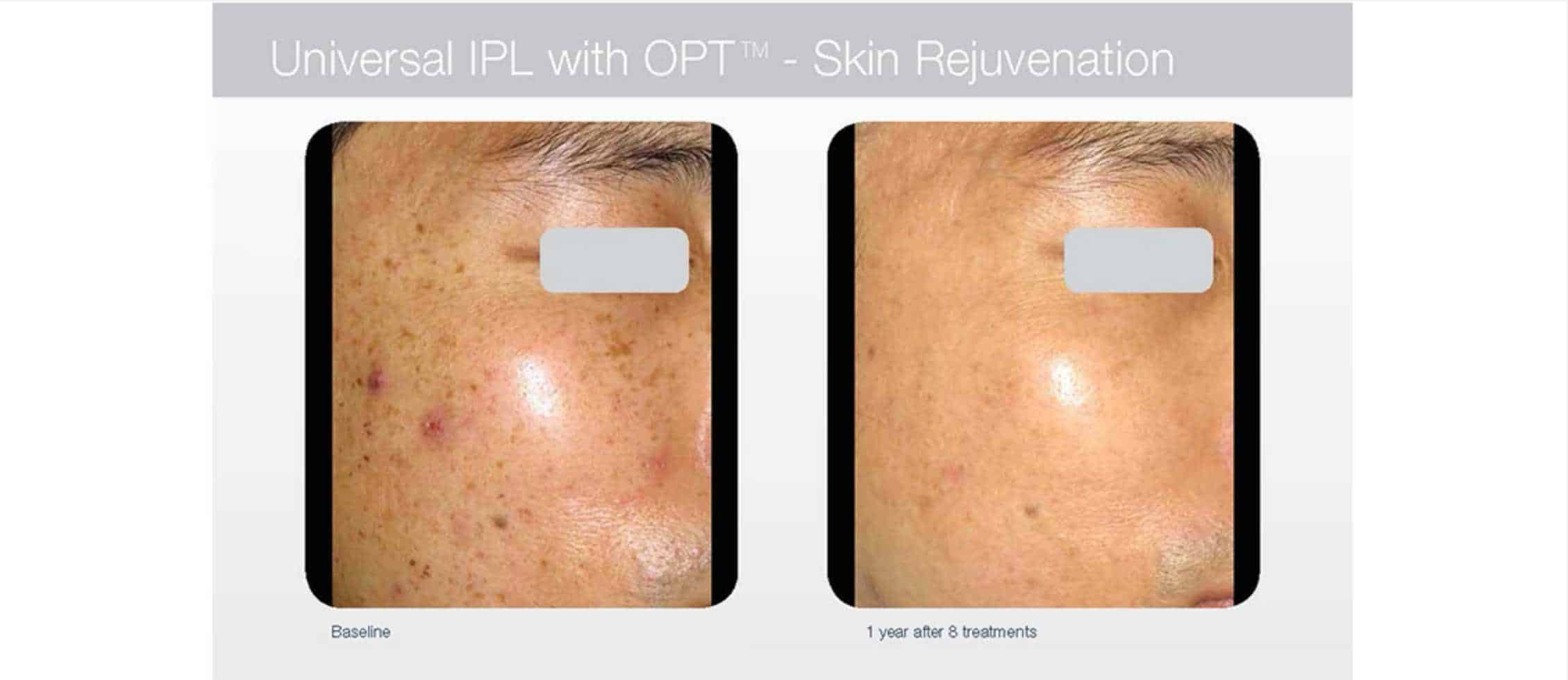 IPL Laser Hair Removal | GTA