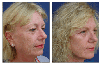 Facelift Pictures Right After Surgery