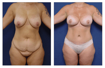 Mommy Makeover Newport Beach, Tummy Tuck