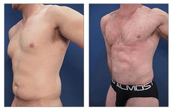 HD liposuction men front left view