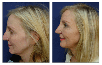 closed rhinoplasty swelling patient 6 left view