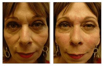 facial filler patient 4 before and after