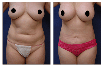 Mini Tummy Tuck After C Section