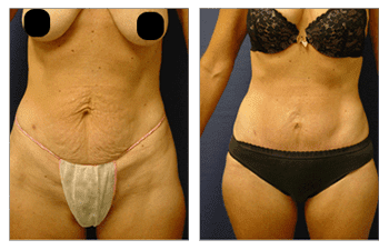 mini tummy tuck patient 7 before and after