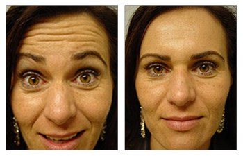botox allergan before and after