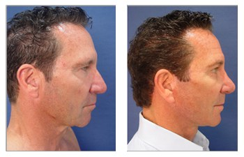 face and neck lift with general anesthesia Dana Point