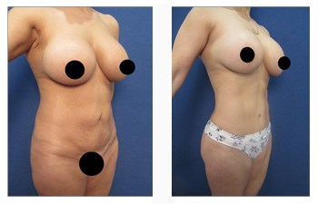 High Definition Liposuction Revision