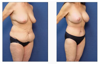 post bariatric surgery patient 3 front right
