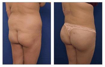 Butt Enhancemen