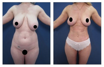 HD lipo with breast reduction