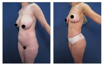 High Definition Liposuction Results
