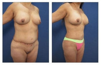 High-Definition Body Contouring Beverly Hills
