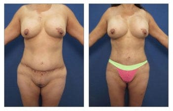 Body Lift with Tummy Tuck