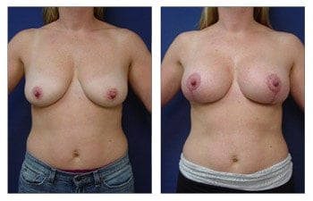 Breast Lift with Implant Augmentation Upper Pole Fullness