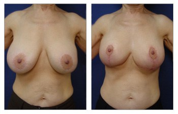 front view Breast Lift With Implant Augmentation To Decrease Areola Size