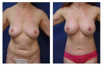 Mommy Makeover With Upper Belly Fullness