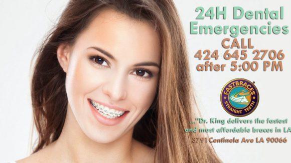 Emergency dentist | Affordable braces los angeles