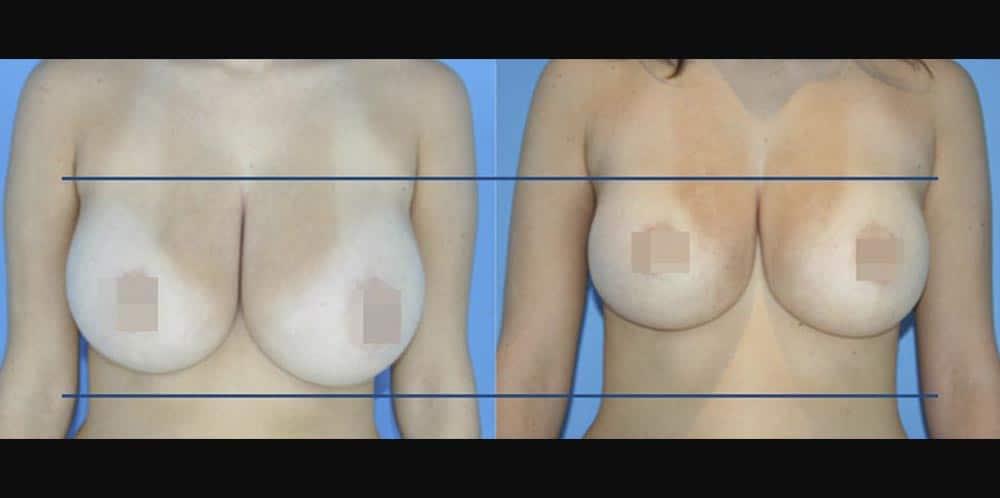 BodyTite_GB_DS_Breast1