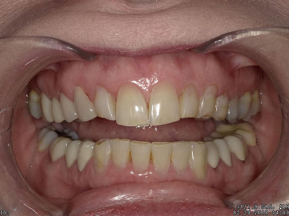 Patient 3, before image, worn, stained teeth