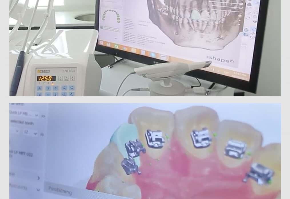 La nueva era de la Ortodoncia Digital