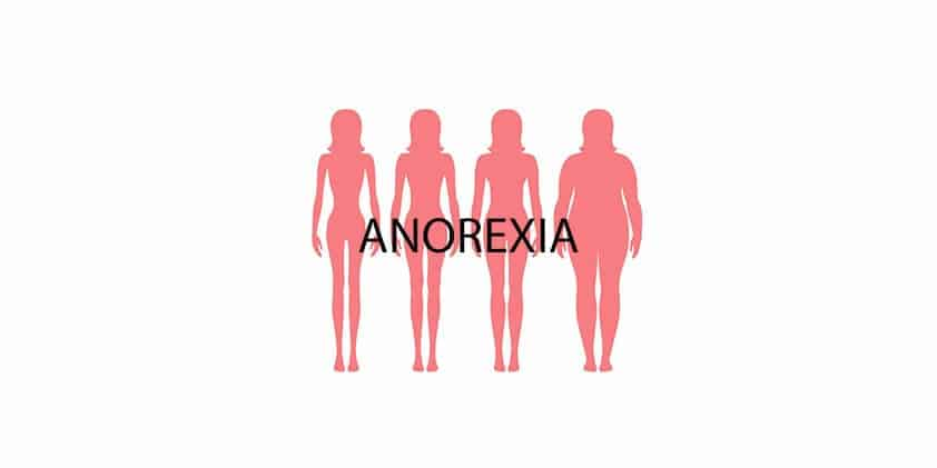 Can CBD Help Treat Anorexia?