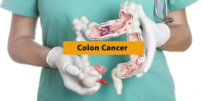 How CBD Can Help in the Fight Against Colon Cancer