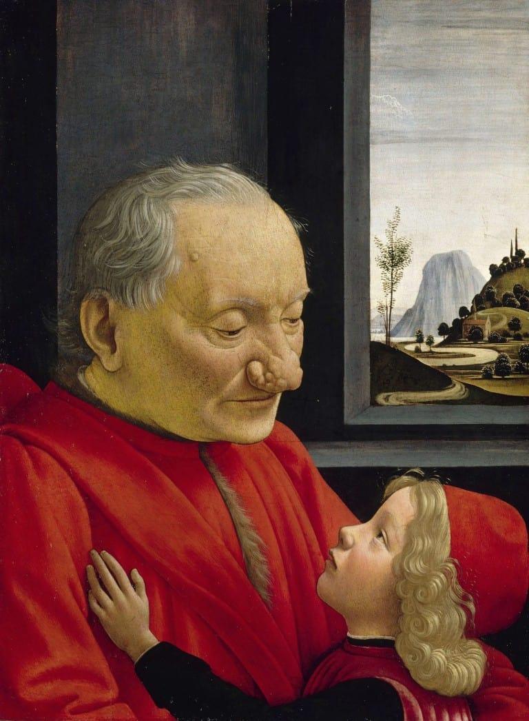 Na obrazie mężczyzna z objawami wywołanymi przez trądzik różowaty.