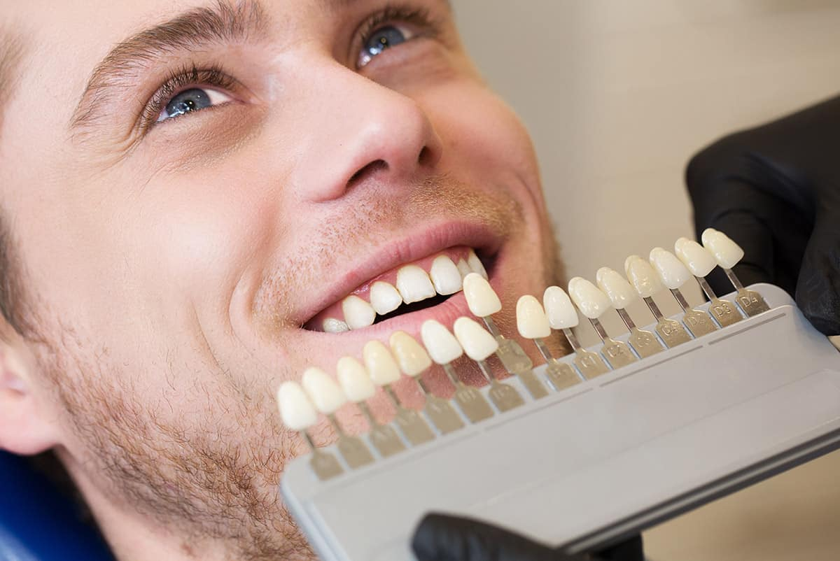 a man chooses his perfect tint of white for his teeth whitening treatment at Keynsham dental care