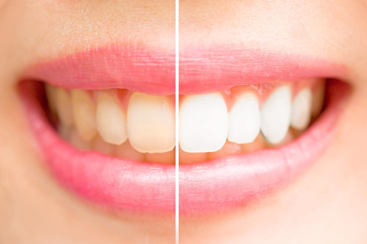 a smile showing before and after teeth whitening treatment
