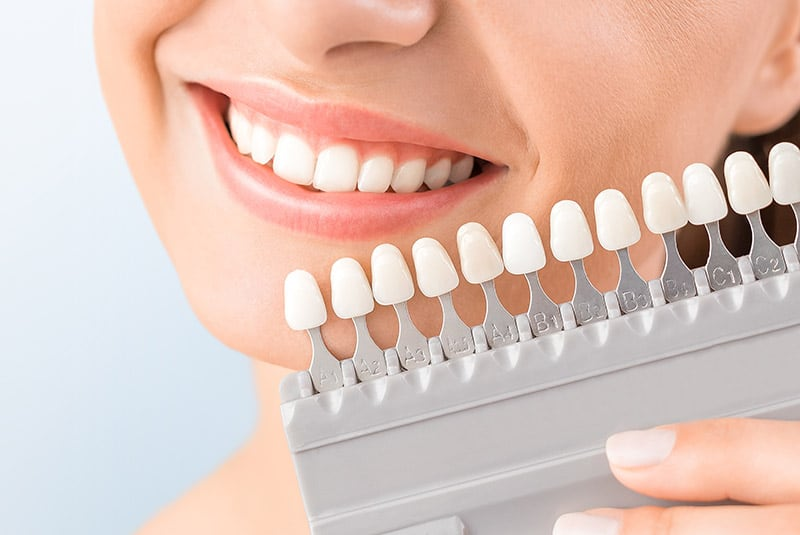 a lady chooses the perfect tint of white for her teeth whitening treatment at Keynsham dental care