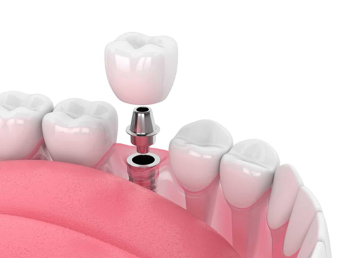 showing dental implants procedure